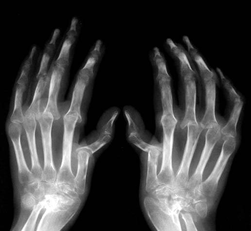 На рентгене артрит