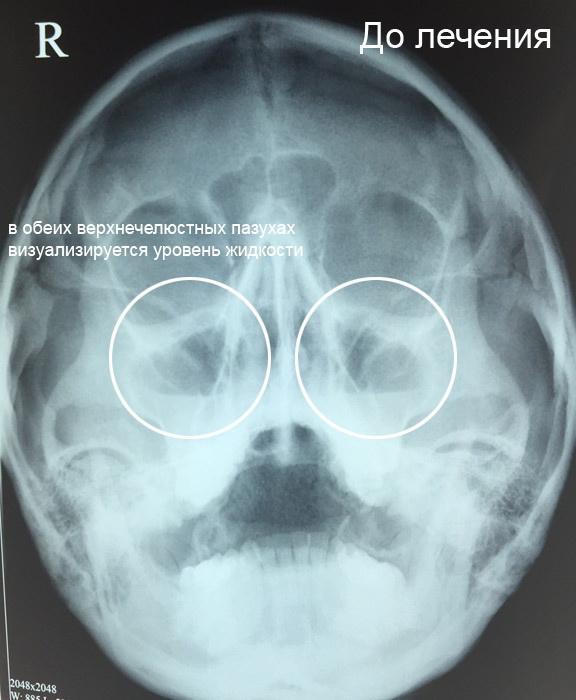 На фото - рентген околоносовых пазух, диагноз - гайморит