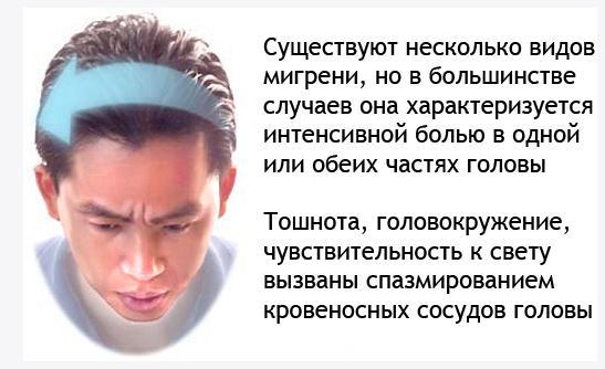 Обострение мигрени