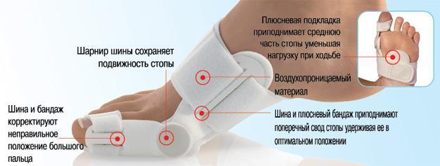 Ортопедические стельки при поперечном плоскостопии