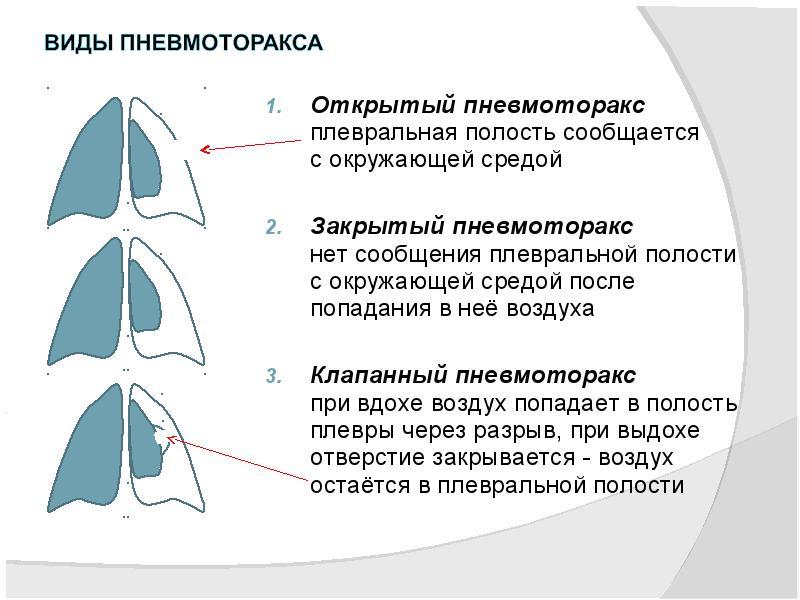 Пневмоторакс, виды