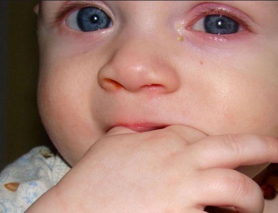 Поражение глаз конъюктивитом