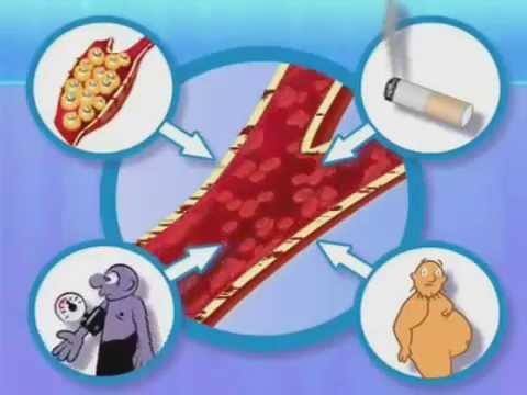 Причины инфаркта миокарда