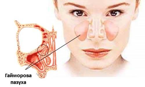 Расположение гайморовой пазухи у человека