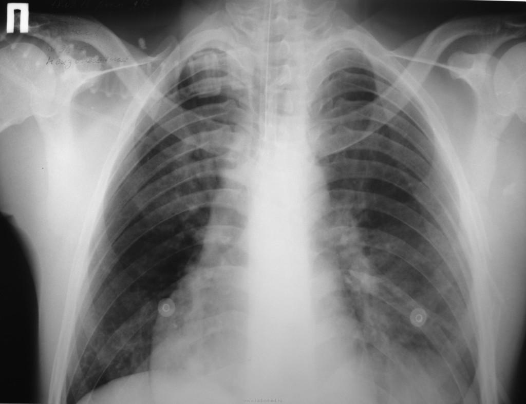 Рентгенограмма травмы грудной клетки