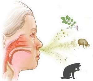 Ринит аллергического типа