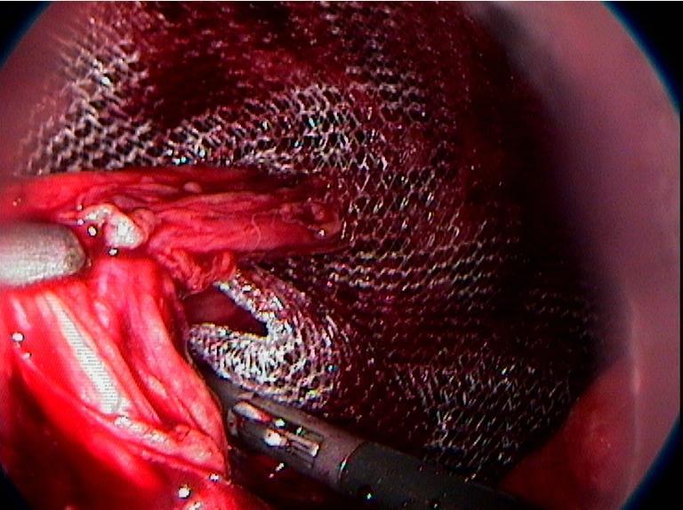 Сетчатый протез, после постановки прикрывает все слабые места, через которые есть вероятность рецидивов грыж