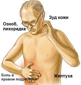 Симптоматика заболеваний печени