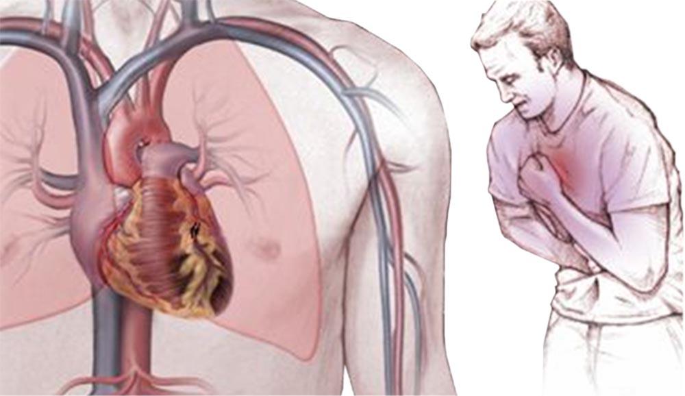 Симптомы стенокардии сердца
