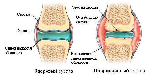 Схема здорового и больного суставов