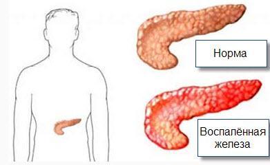 Схема панкреатита
