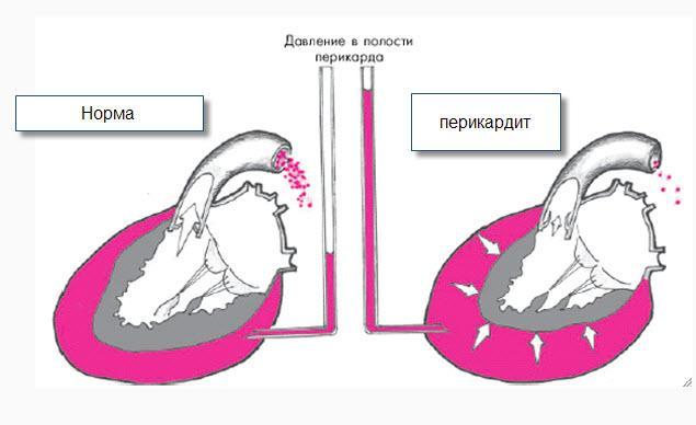 Схема перикардита