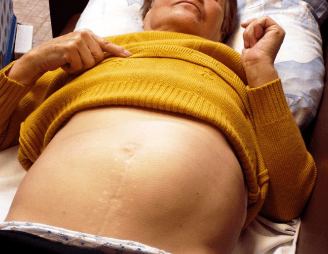 Увеличение селезенки у пациентки