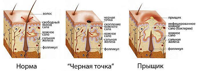 Как отличить прыщ или фурункул