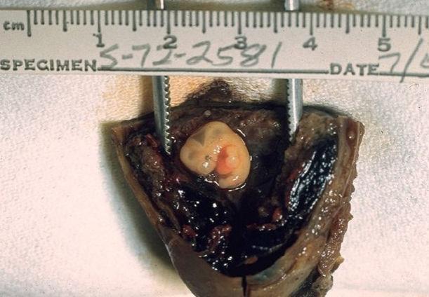 Эмбрион внематочной беременности