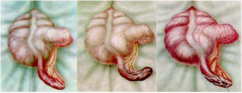Формы острого аппендицита: катаральный, флегмонозный и гангренозный аппендицит