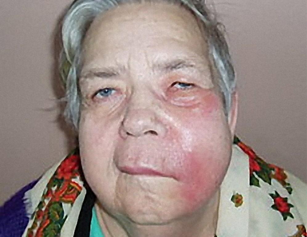 Снять воспаления на лице в домашних условиях