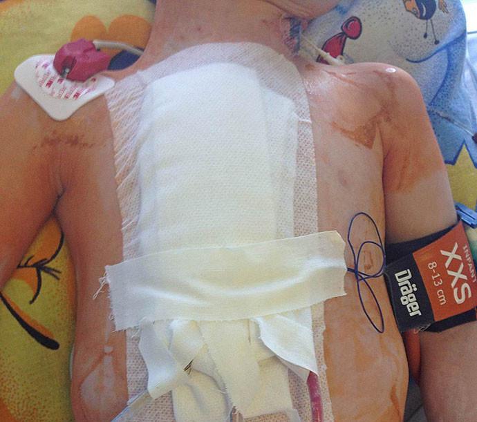 Годовалый ребенок через 2 часа после проведения эндоваскулярного лечения