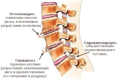 На схеме изображен остеохондроз с клювовидным разрастанием позвонков