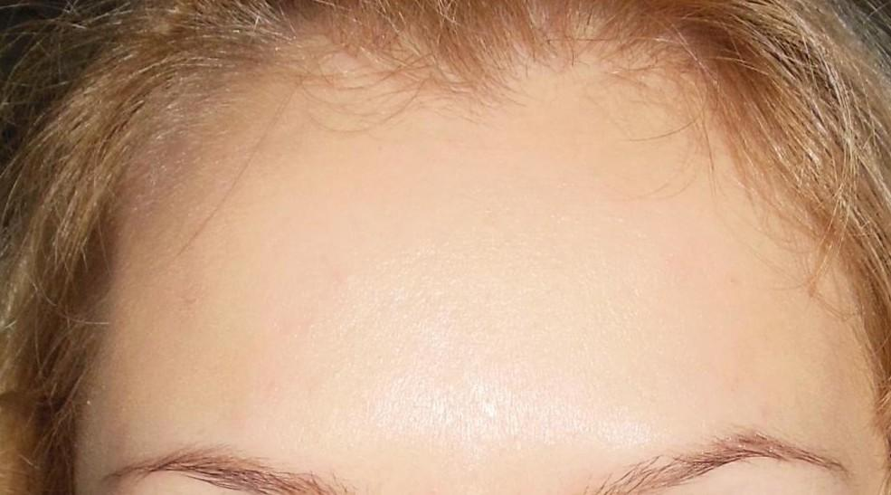 Препарат делает кожу менее жирной