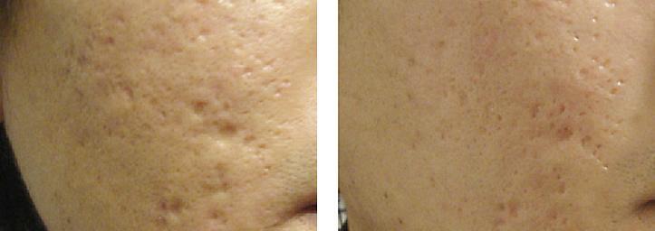 Лечение кожи салициловой кислотой