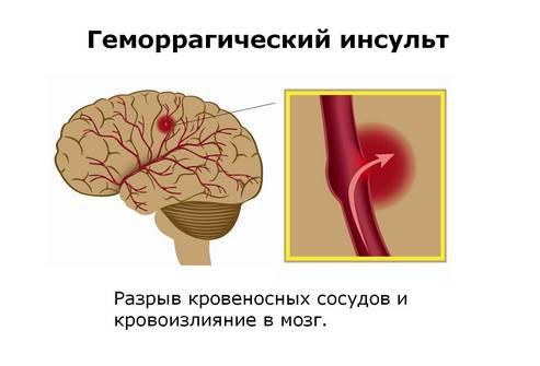 Геморрагический инсульт – грозное заболевание, требующее незамедлительной медицинской помощи