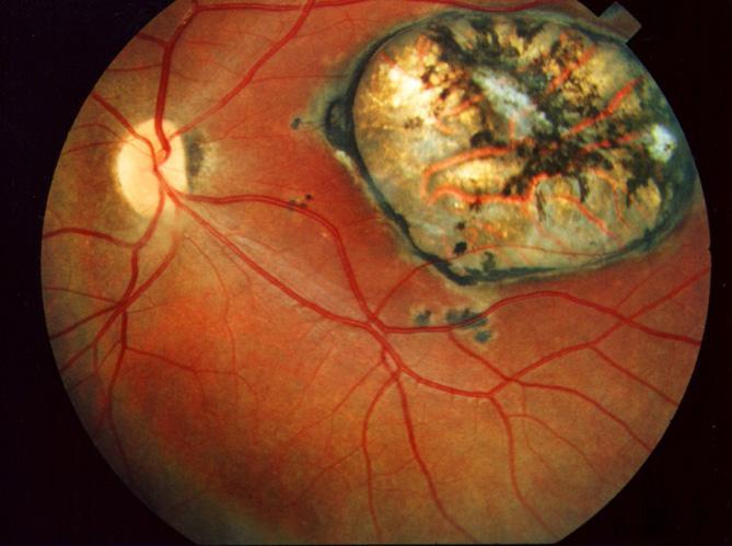 Глазной токсоплазмоз - осложнение, фото