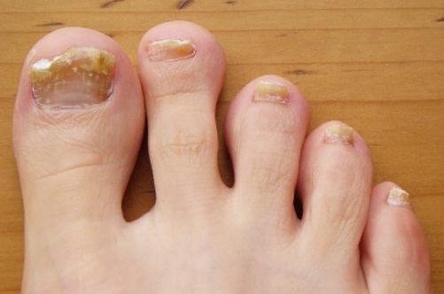 Грибок ногтя на ногах
