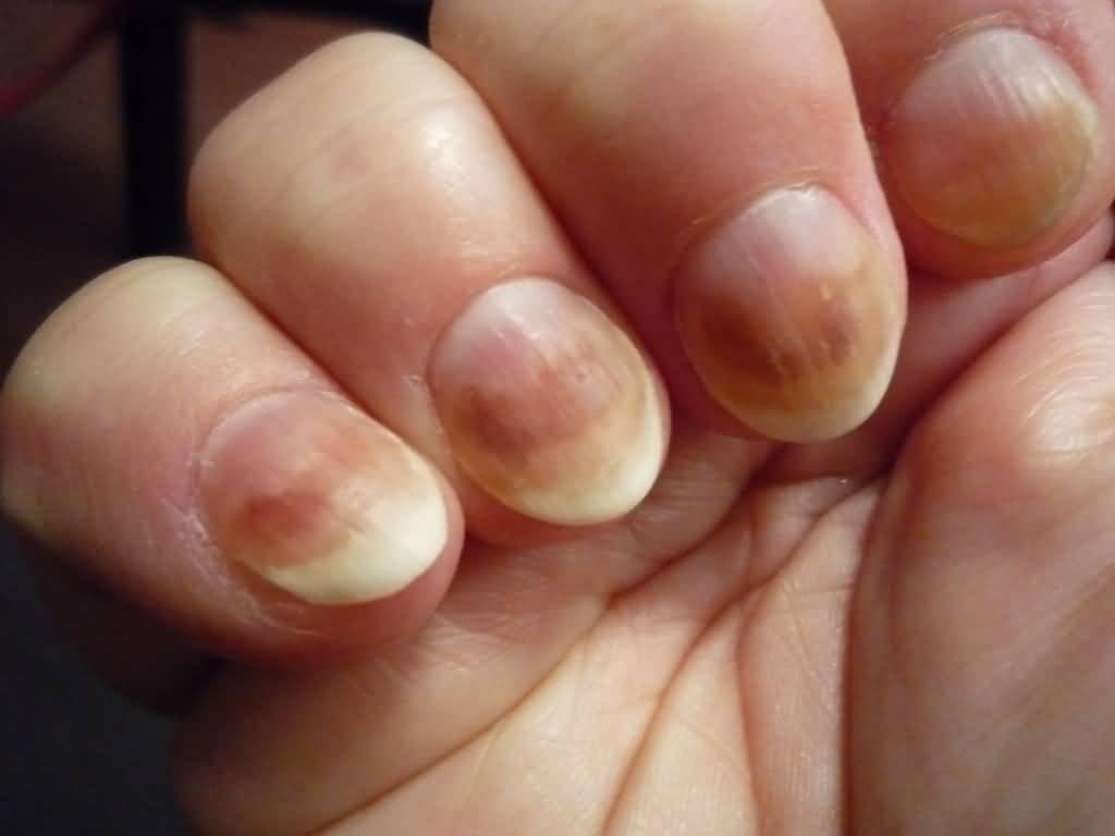 Грибок ногтей на пальцах рук симптомы