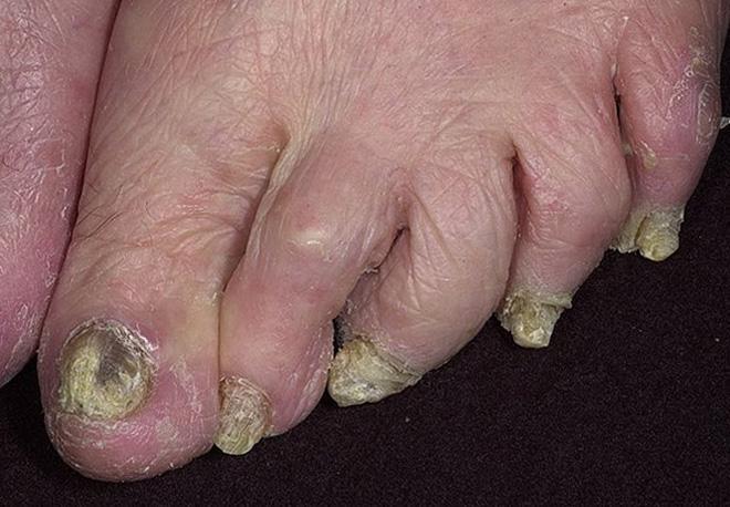 Запущенная форма грибка на ногах