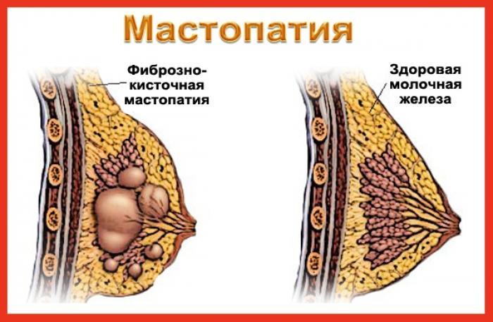 Здоровая грудь и грудь с мастопатией