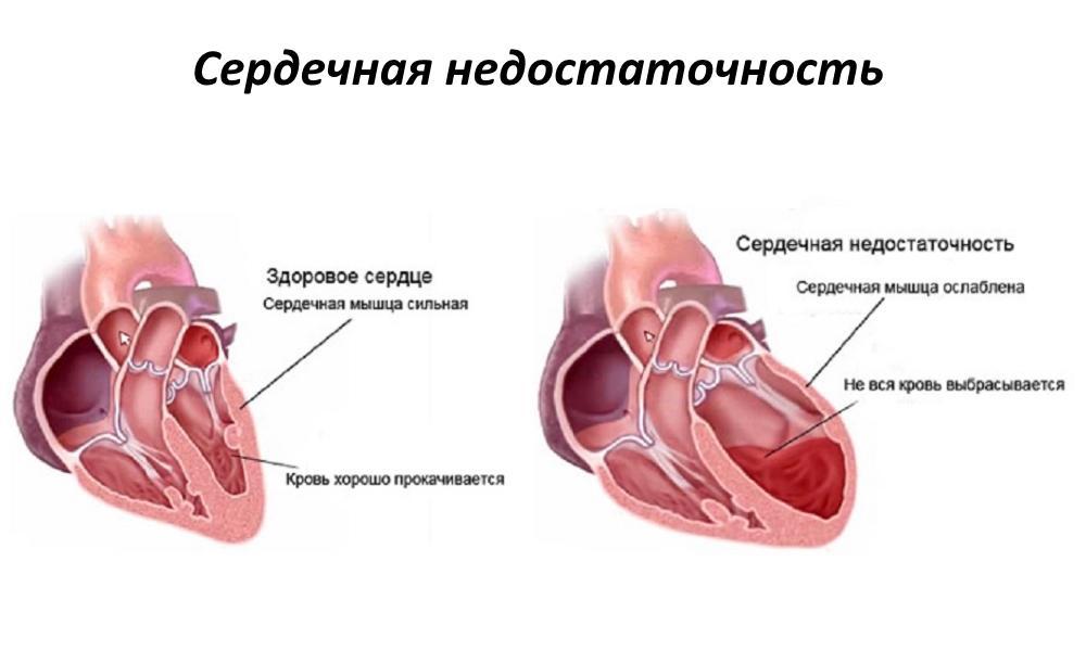 Здоровое сердце и сердце при сердечной недостаточности