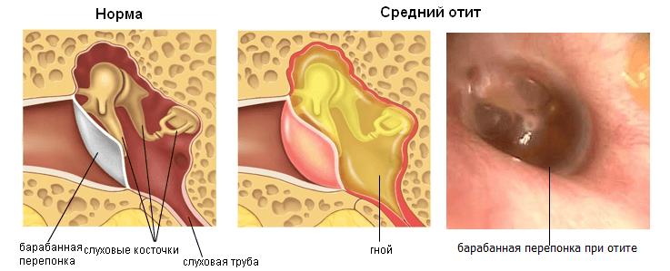 Здоровое ухо и средний отит
