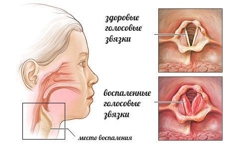 Здоровые голосовые связки и воспаленные связки