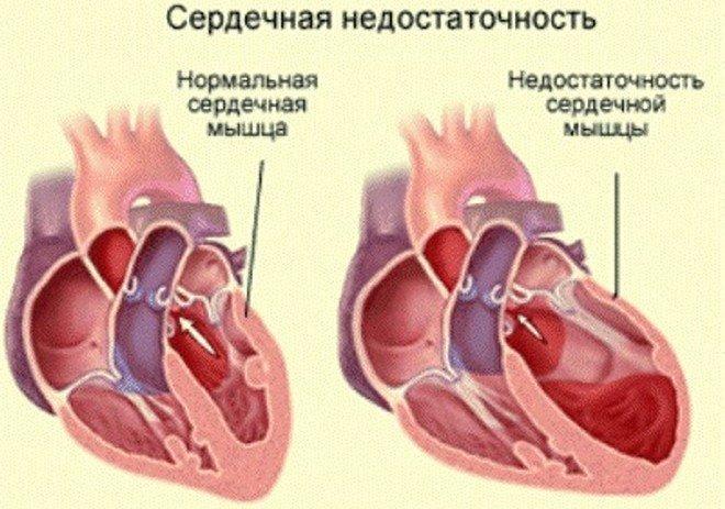 Изображение сердечной мышцы в норме и сердечной недостаточностью