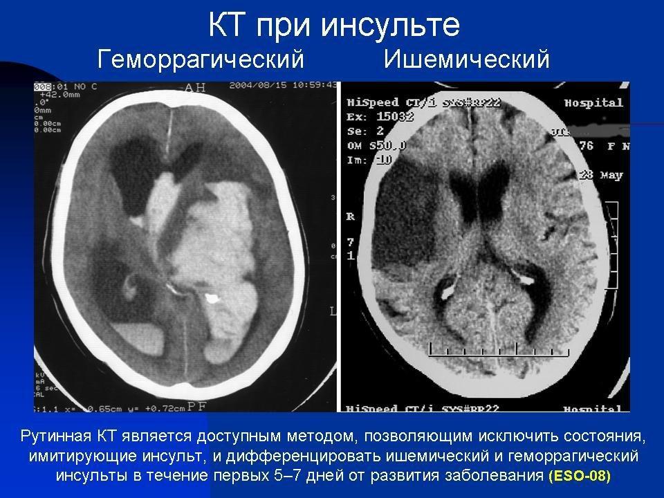 Компьютерная томография при инсульте