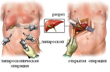 Лапароскопическая и открытая операция