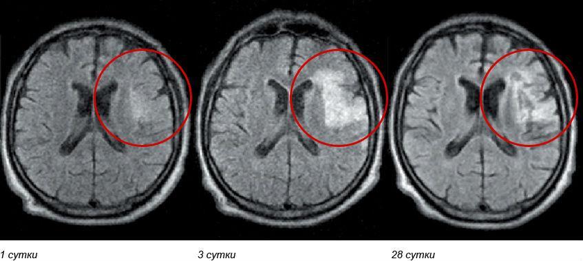 МРТ пациента с ишемическим инсультом
