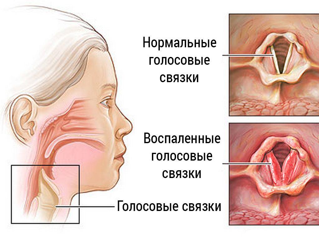 Наглядное изображение воспаленных и здоровых голосовых связок