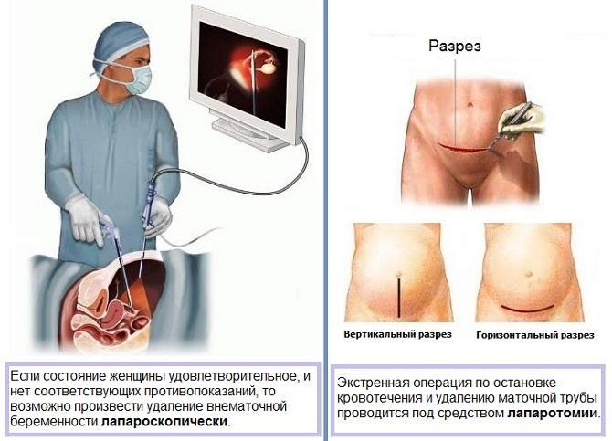 Операция по удалению маточной трубы