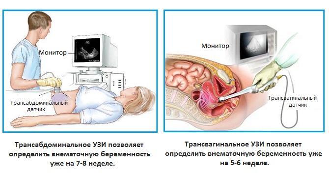 Определение внематочной беременности
