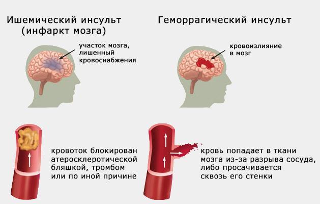 Отличия ишемического инсульта от геморрагического