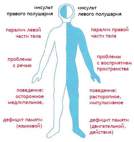 Последствия инсульта в зависимости от полушария