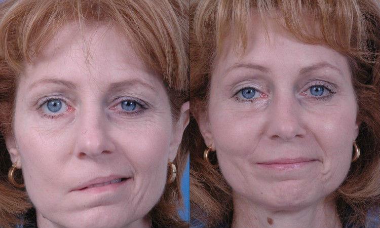 Правосторонний паралич лицевого нерва