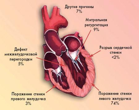 Причины кардиогенного шока в процентном соотношении