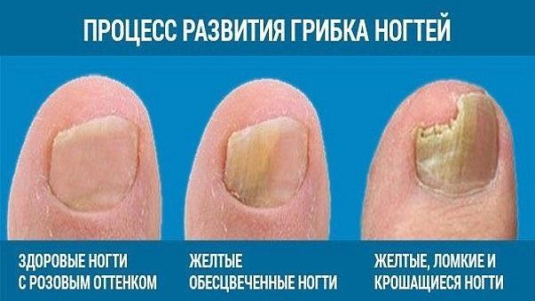 Грибок ногтевой пластины на руках