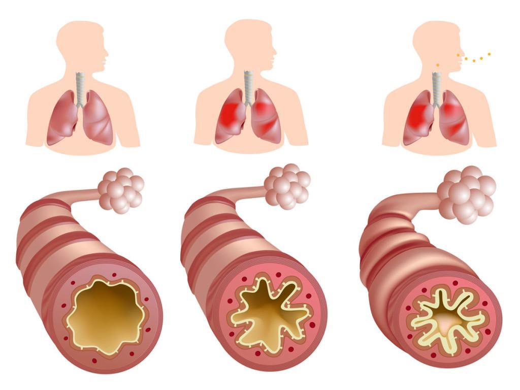 Различнве формы стеноза легочной артерии