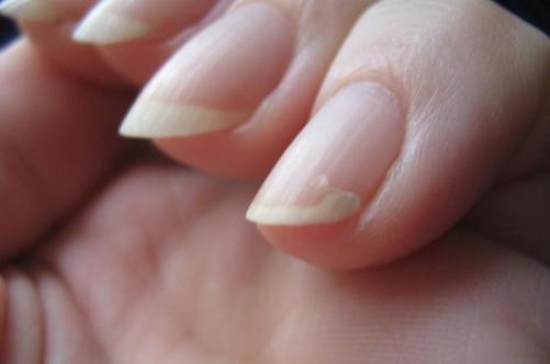 Слоящиеся ногти и выпадающие волосы - признаки психосоматики выпадения волосСлоящиеся ногти и выпадающие волосы - признаки психосоматики выпадения волос
