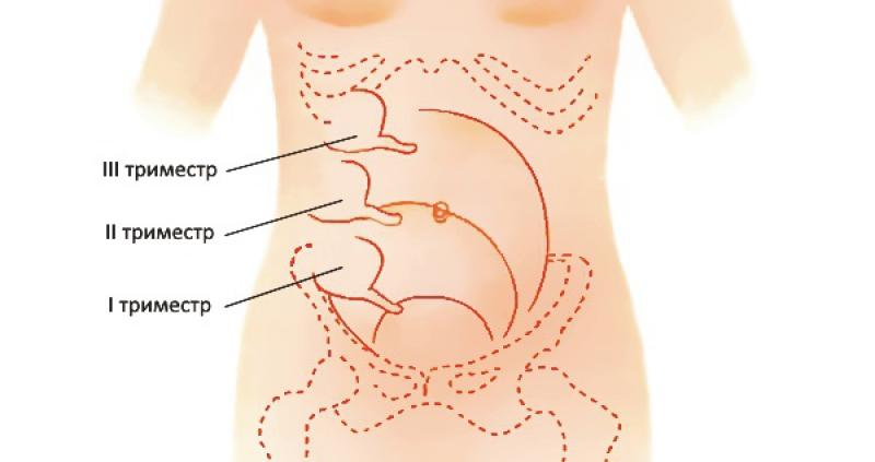 Смещение аппендицита в зависимости от триместра