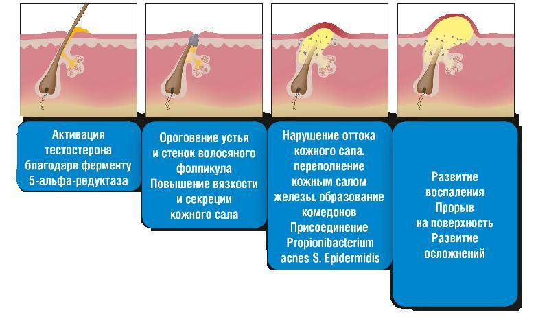 Криофарма от бородавок отзывы